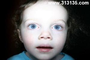 نوزاد و فلش دوربین
