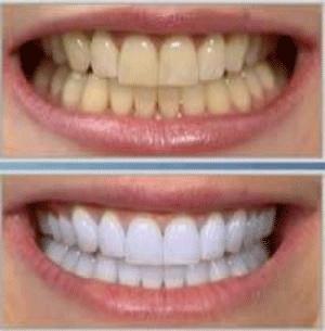 سفید کردن دندان به روش طبیعی