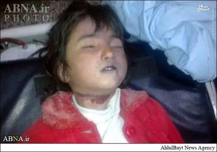 عکس: ذبح دختر شش ساله در شهر کویته (۱۳+)