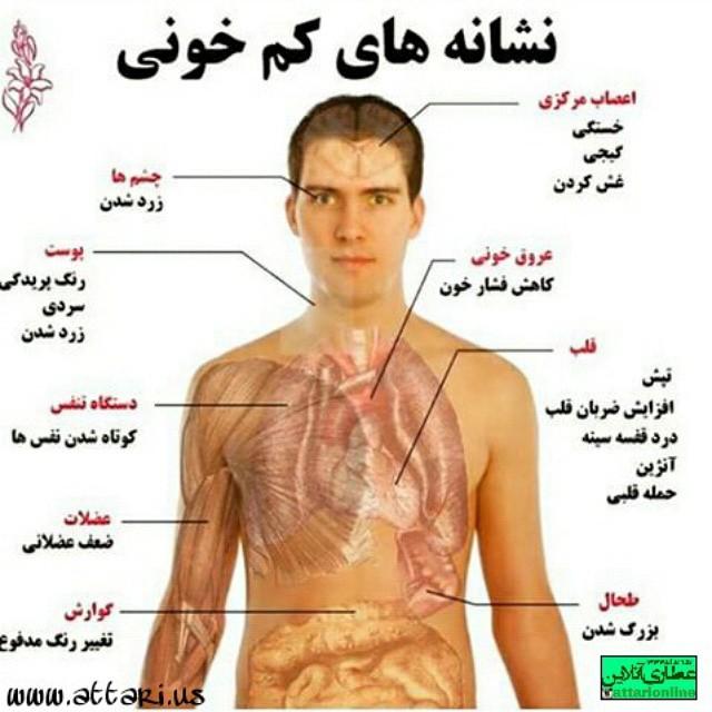 نشانه های کم خونی + تصویر