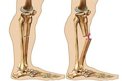 علائم شکستگی استخوان و راههای درمان!