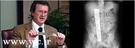 عجیب ترین اشتباهات پزشکی در جهان