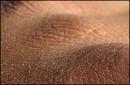 علت خشک شدن پوست