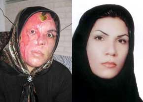 فاجعه جدید: اسید پاشی روی زنان بدحجاب در اصفهان