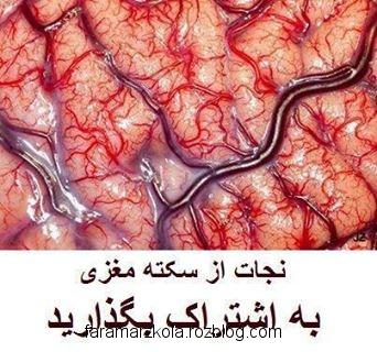 نجات از سكته مغزی در مواردی خاص