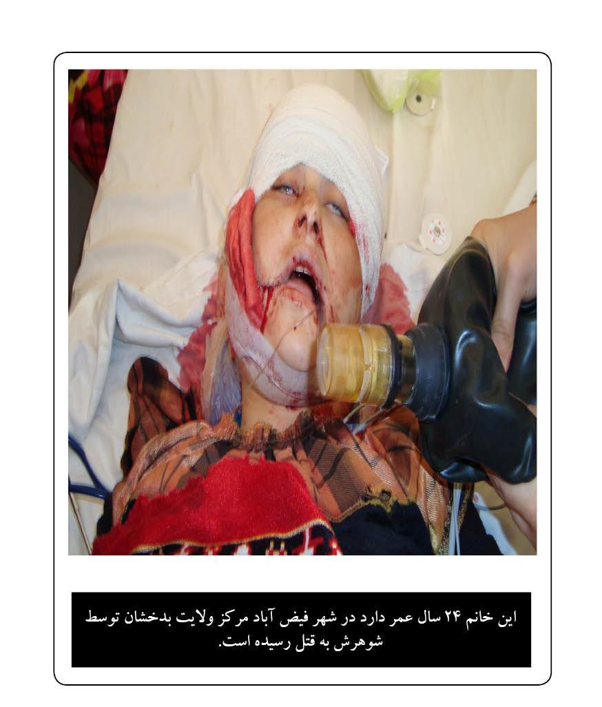 خشونت علیه زنان در افغانستان از نگاه تصاویر