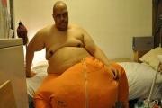مرگ مردی با بیضه های 60 کیلویی! +تصاویر