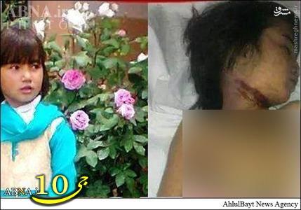 عکس/ ذبح دختر شش ساله در شهر کویته(13+)