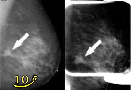 ۹ راهکار برای جلوگیری از سرطان سینه(پستان)