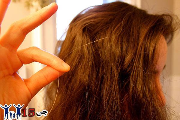 سفید شدن موها(canitie)ودرمان آن