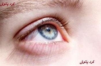 تست هوش چشم رنگی ها