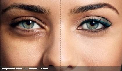 درمان سیاهی دور چشم با طب سنتی
