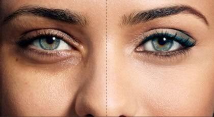 چگونه سیاهی دور چشم را از بین ببریم ؟