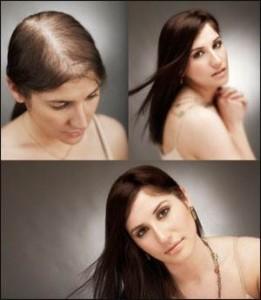 چند نکته در مورد کاشت مو