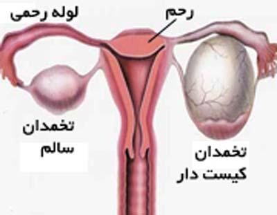 پیچ خوردگی تخمدان