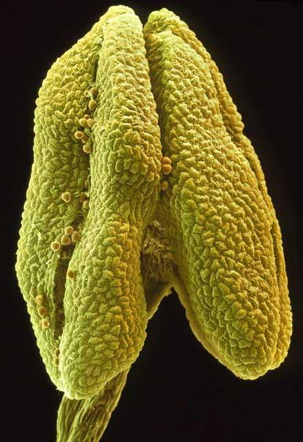 تصاویر گلها با استفاده از میکروسکوپ الکترونی