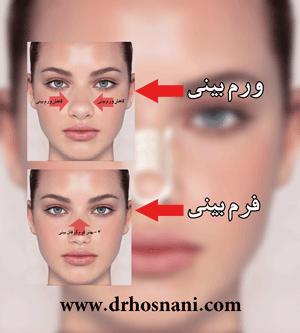 روش صحیح چسب زدن به بینی بعد از عمل جراحی + فیلم