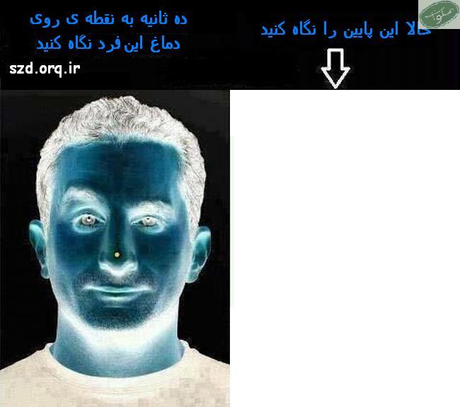 تصویر خطای دید 2