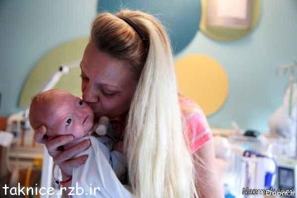 تولد نوزاد بدون بینی+عکس