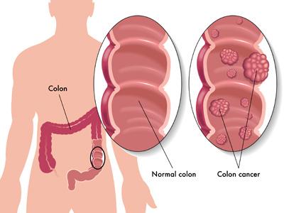 خطر سرطان روده