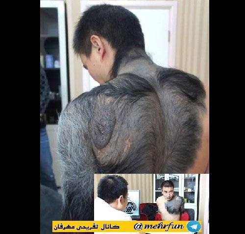 از مرد شامپانزه ای تا دختر پوست گاوی! // عجیب ترین انسان های دنیا