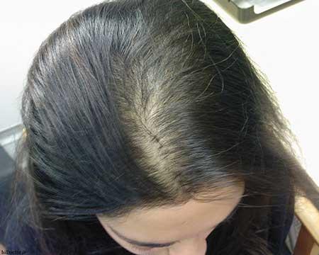 تقویت و بر شدن موی سر با مواد طبیعی