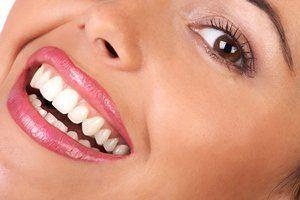 4روش طبیی برای سفید شدن دندان ها