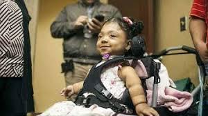 دختری بدون استخوان با بزرگترین راز پزشکی