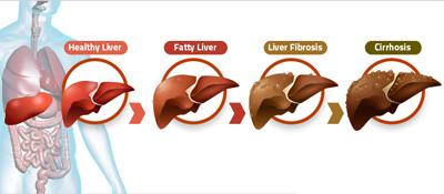 بیماری های ناشی از کبد چرب در ایام نوروز