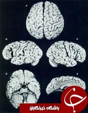 شگفتی های مغز انشتین پس از مرگش + عکس