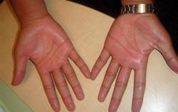 علایم سرطان در دست ها