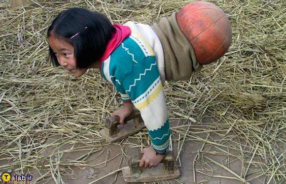 اراده ای فولادین دختر چینی با نیمی از بدن !+ تصاویر
