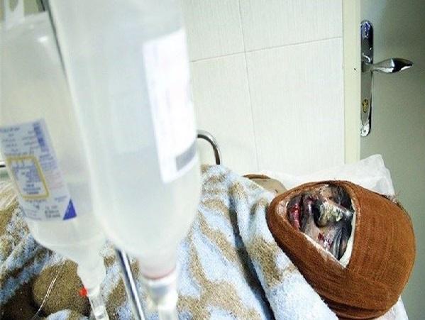 جزییات حادثه اسید پاشی سعادت آباد به روایت پلیس