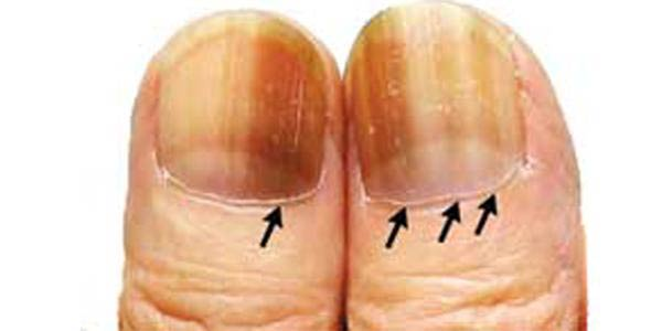 دستها نشان دهنده وضعیت سلامتی