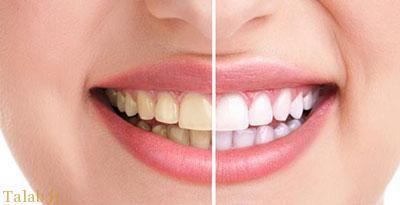 عادت های بسیار بدی که باعث خرابی دندان هایتان می شوند