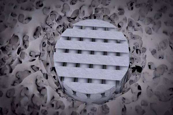 ساخت غضروف با پرینتر سه بعدی
