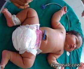 عکس بچه غول ، سنگین ترین زن دنیا متولد شد