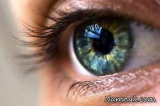 از علل ایجاد بیماری شبکیه چشم تا درمان آن