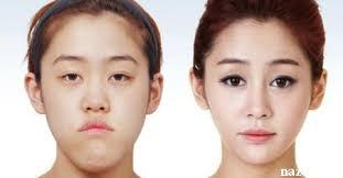 عمل های زیبایی صورت