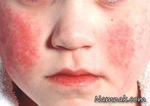 دلیل سرخی پوست صورت و راه پیشگیری و درمان