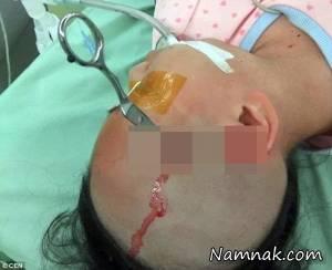 پدر بی رحم با قیچی سر دخترش را شکافت + تصاویر