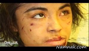 شکنجه وحشیانه دختر فراری که بردگی می کرد + تصاویر