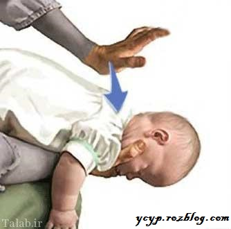 خروج به موقع اجسام از گلوی بچه