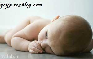 درمان محل سوختگی پوشک بچه