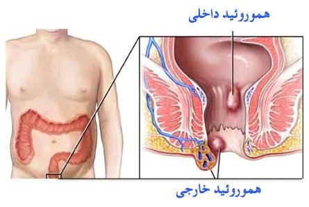 درد در ناحیه مقعد زنان و راه حل های پزشکی
