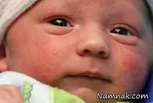 عوامل خطر رتینوپاتی چشم در نوزادان را بشناسید