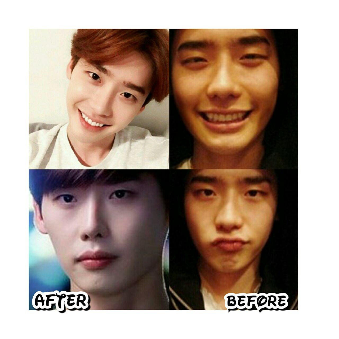 عکس بازیگر لی جونگ سوک قبل و بعد از عمل بینی👃🏻