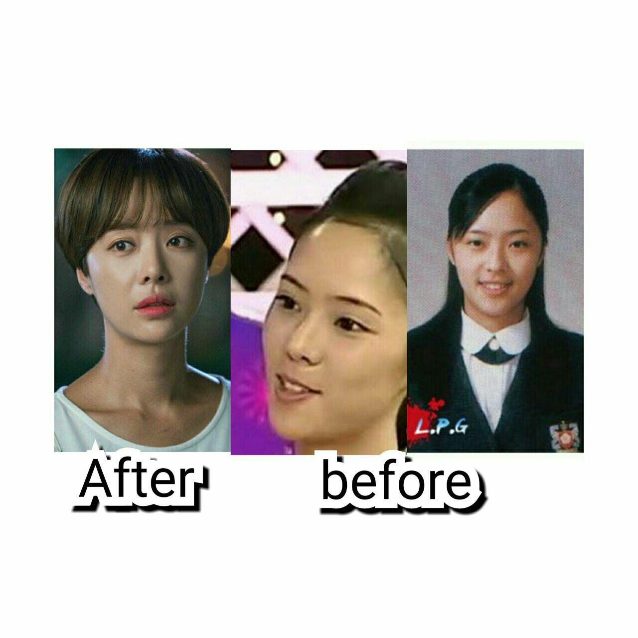 عکس قبل و بعد از عمل هوانگ جونگ ایوم بازیگر سریالهای (بکش خلاصم کن،،عاشقان خوش شانس) قبل و بعد از عمل