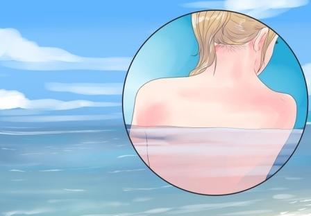 درمان جوش پشت بدن