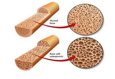 خوردنی های مضر برای استخوانها